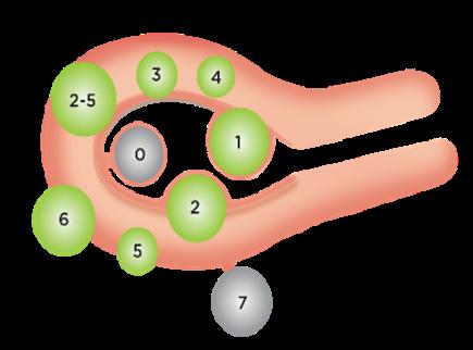 FIGO子宮肌瘤分型